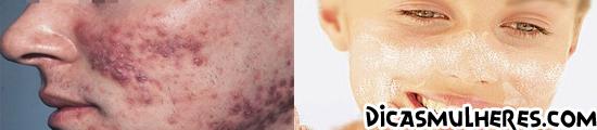 Saiba como se prevenir das malditas acnes
