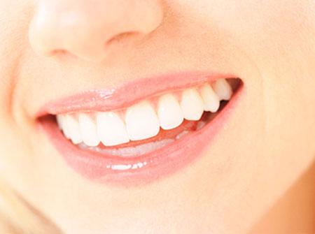 Como Fazer Clareamento Dental Caseiro Dicas Mulheres